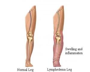 Lymphedema-leg